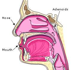 Breathing can be obstructed if the adenoids
