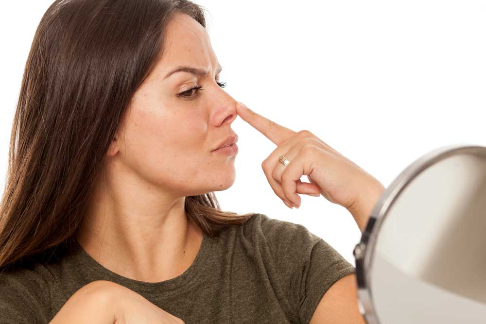 5-things-about-rhinoplasty