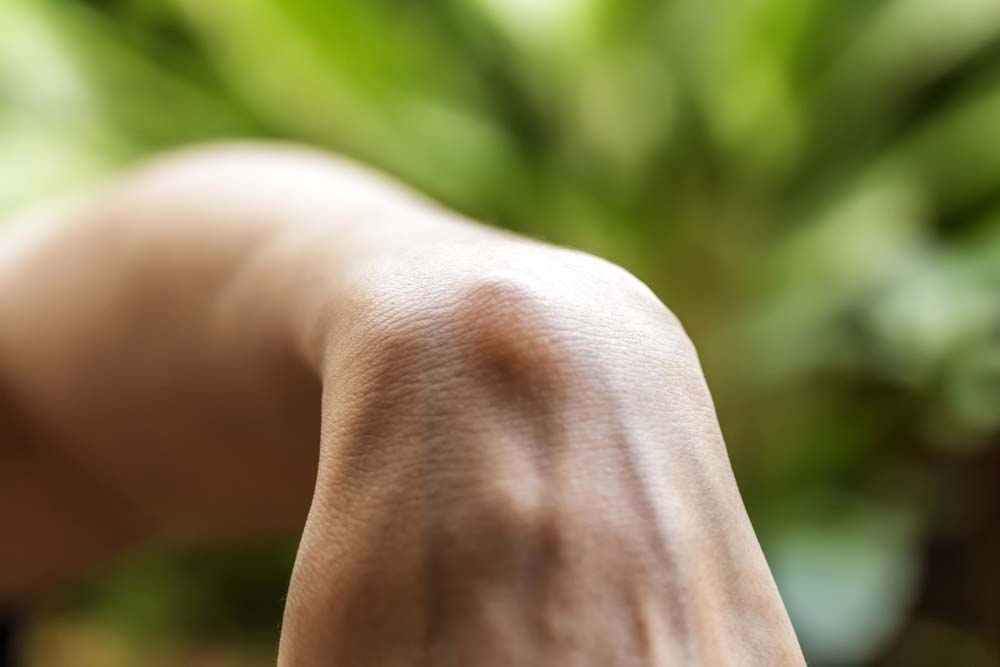 living-with-ganglion